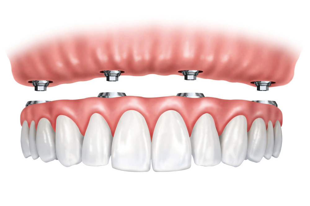 Implantology for the edentulous patient: simplified protocols