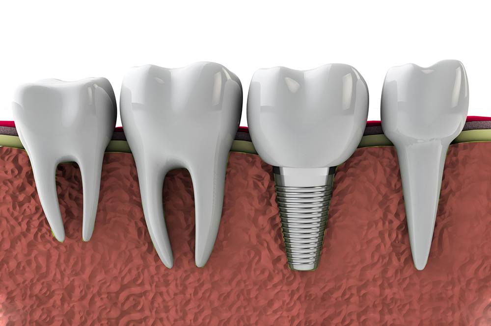 Periimplantitis … what it is and how can we defend ourselves